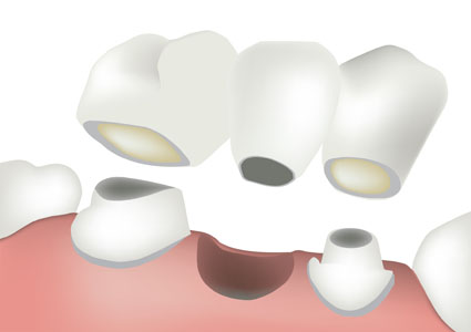 How Does A Dental Bridge Compare To Implants And Dentures?